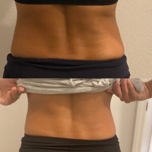 EMS muscle toning results